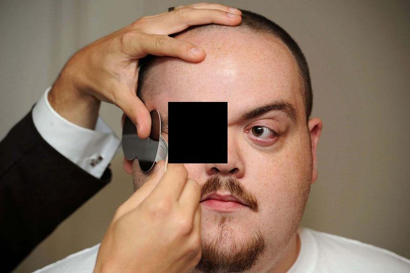 Человек с самыми выпирающими глазами в мире