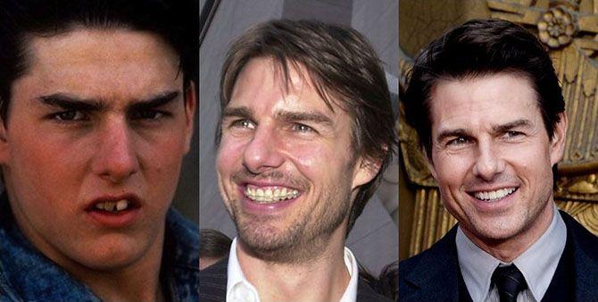 Секрет голливудской улыбки в брекетах