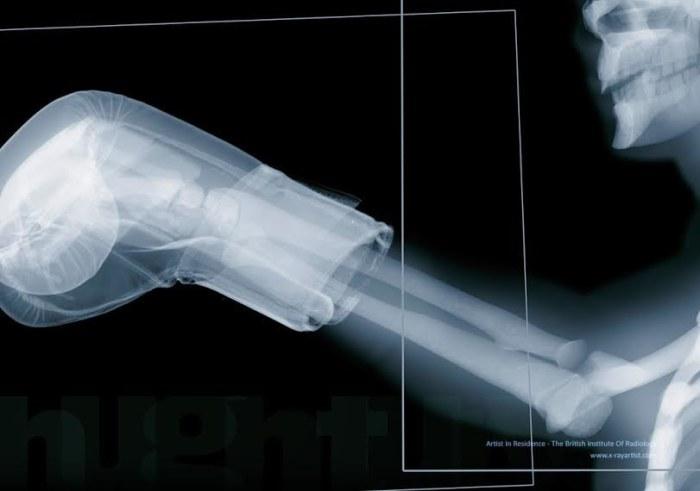 Люди в рентгеновских лучах от Хью Тёрви