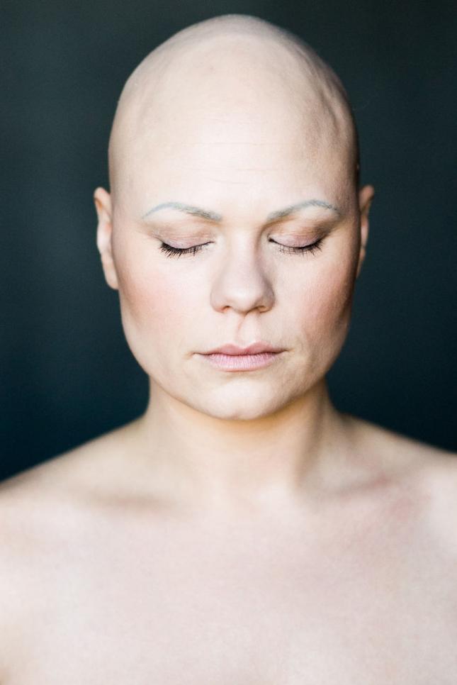 Проект Baldvin — красота облысения от исландского фотографа