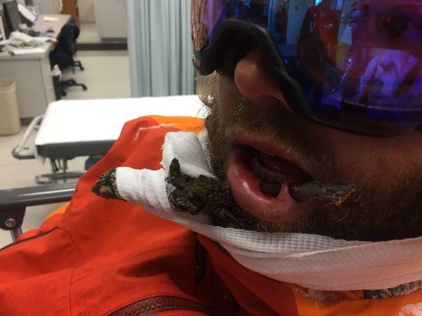 Лыжник проехал между двумя деревьями и поймал губой ветку