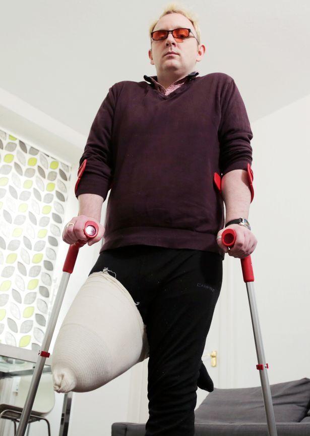 Липовый инвалид ищет хирурга, который отрежет ему здоровую ногу