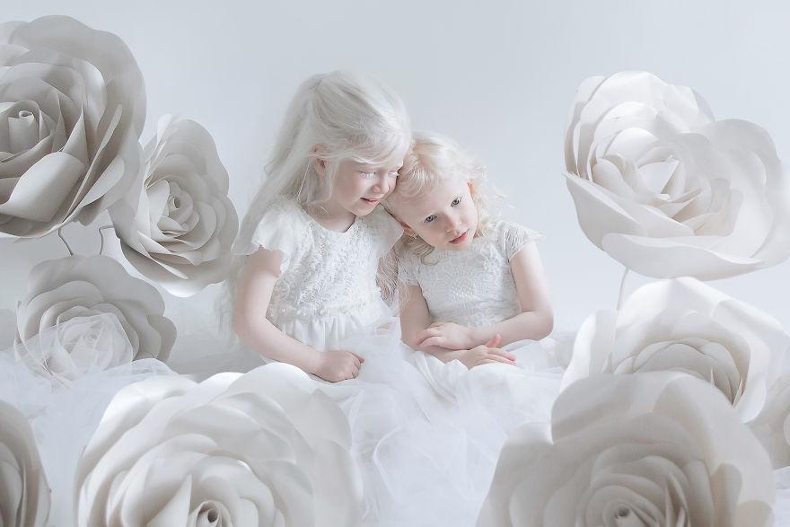 Фарфоровые люди-альбиносы в фотопроекте израильского фотографа