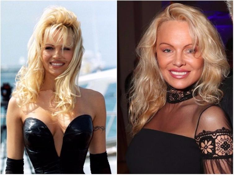 25 лет спустя: знаменитости тогда и сейчас