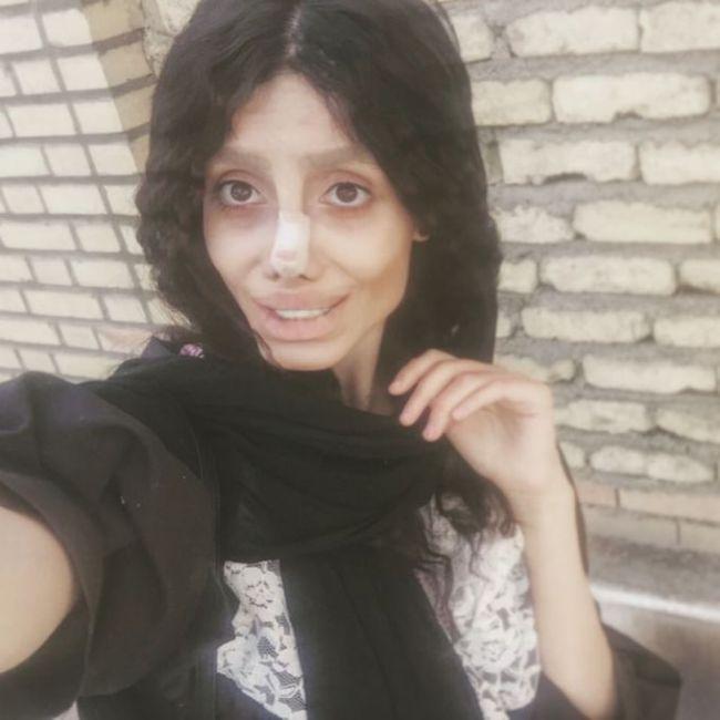 Иранка сделала 50 операций, чтобы быть похожей на Анджелину Джоли