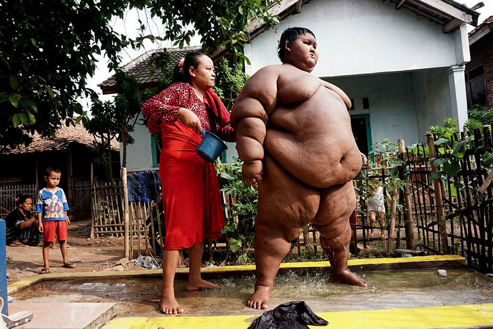 Самый толстый мальчик в мире похудел на 76 кг