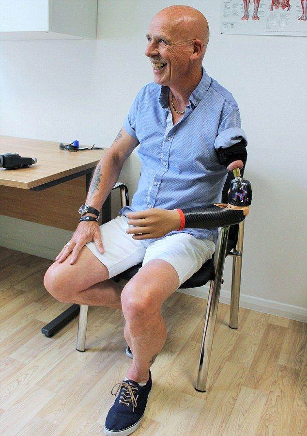 57-летнему британцу вживили бионический протез с кучей насадок