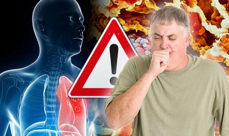Самые смертоносные болезни в мире