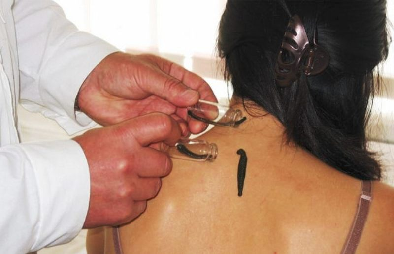 Необычные, но эффективные медицинские процедуры