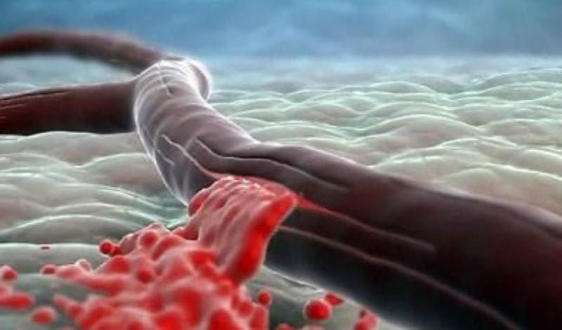 Сигналы тела о надвигающемся инсульте