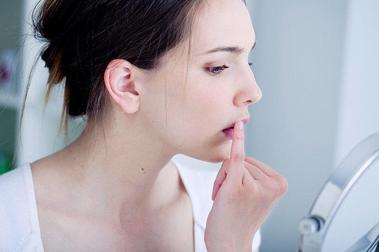 Что следует знать о герпесе на губах
