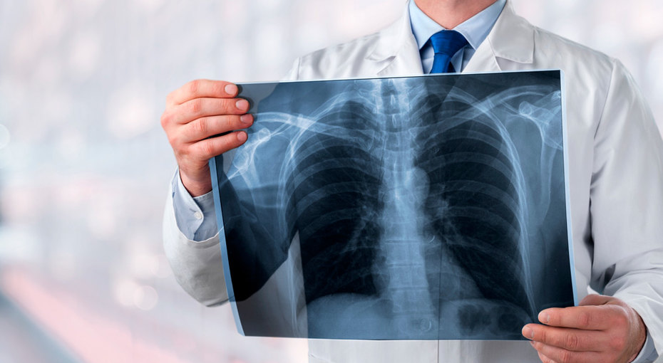 Главные признаки скрытой пневмонии