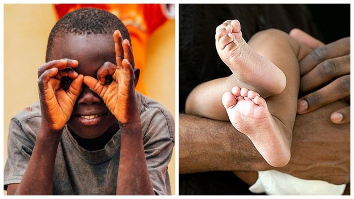 Из-за чего у темнокожих людей светлые ступни и ладони