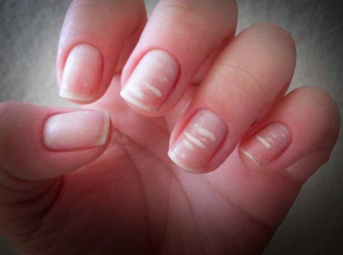 Из-за чего появляются белые пятнышки на ногтях?