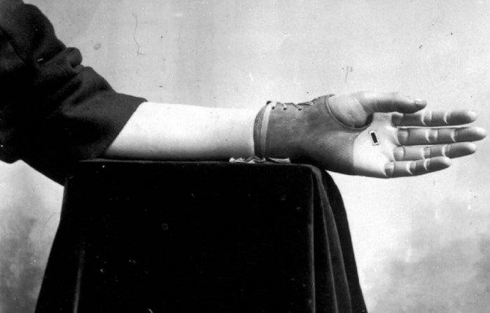 Джеймс Джилингем — гениальный протезист XIX века