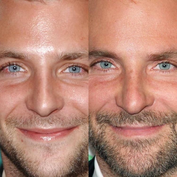 Лица знаменитостей на снимках «тогда и сейчас» с разницей в 10 и более лет