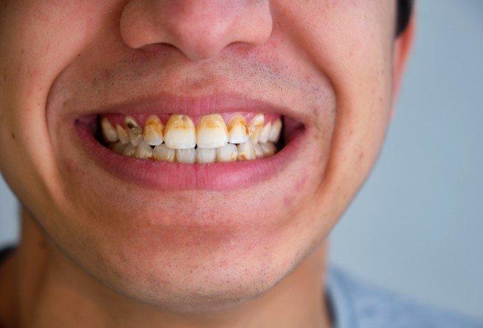Что будет, если не чистить зубы целый месяц?